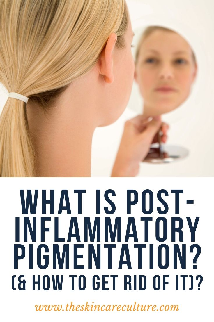 What Is Post-Inflammatory Pigmentation (& How To Get Rid Of It)?