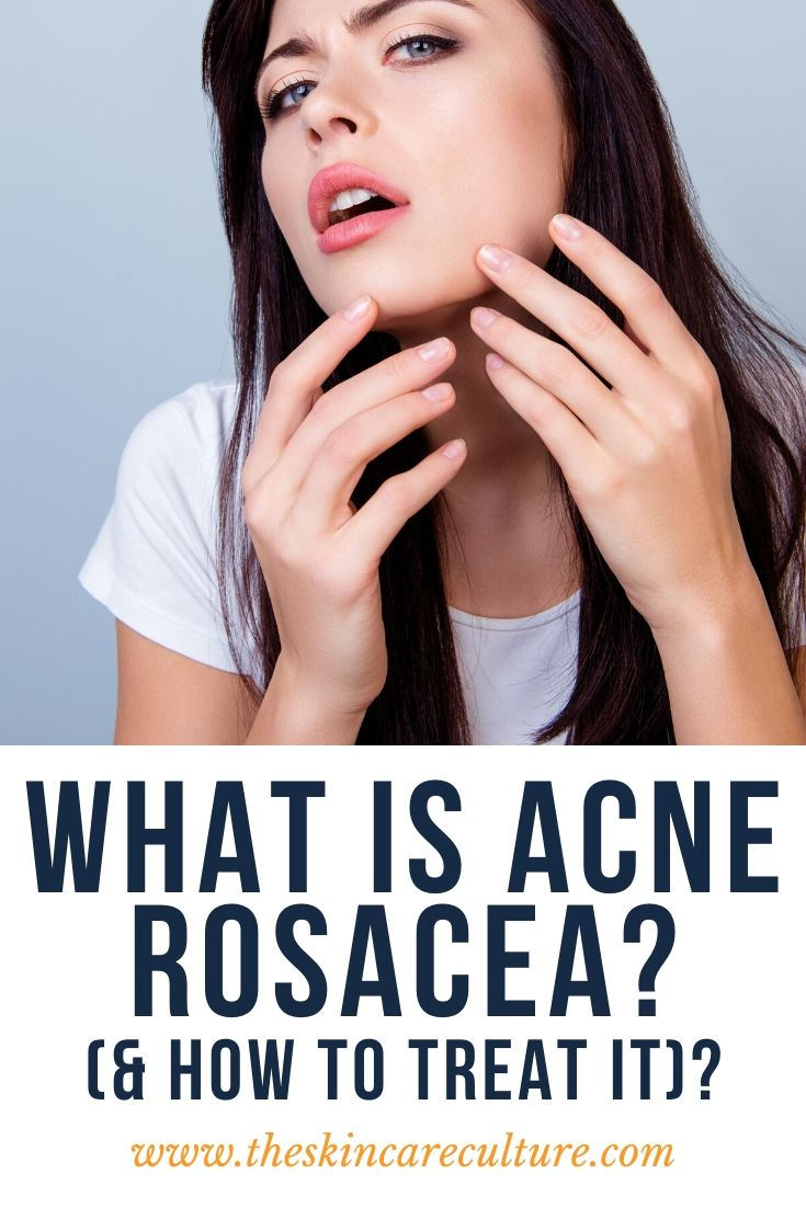 What Is Acne Rosacea (& How To Treat It)?