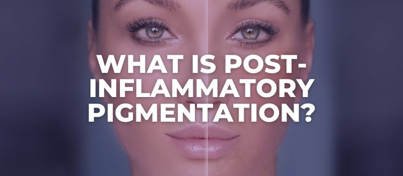 What Is Post-Inflammatory Pigmentation?