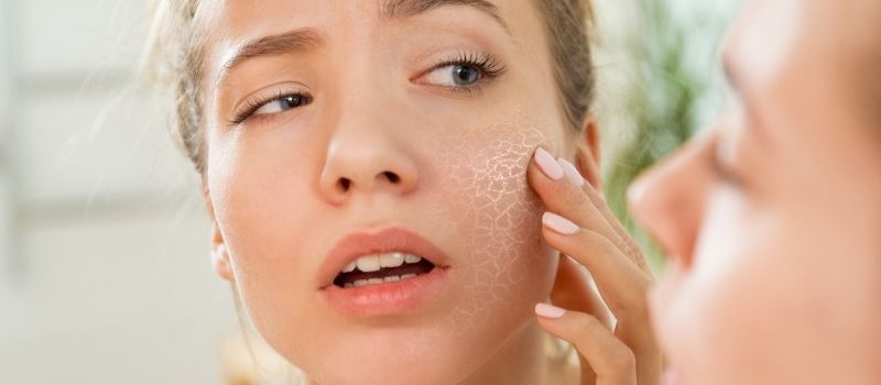 simple remedies for dry skin