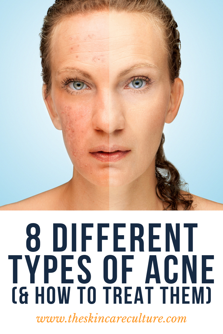 8 different types of acne