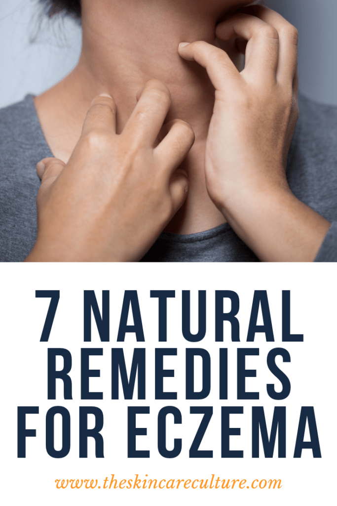 natural eczema remedies
