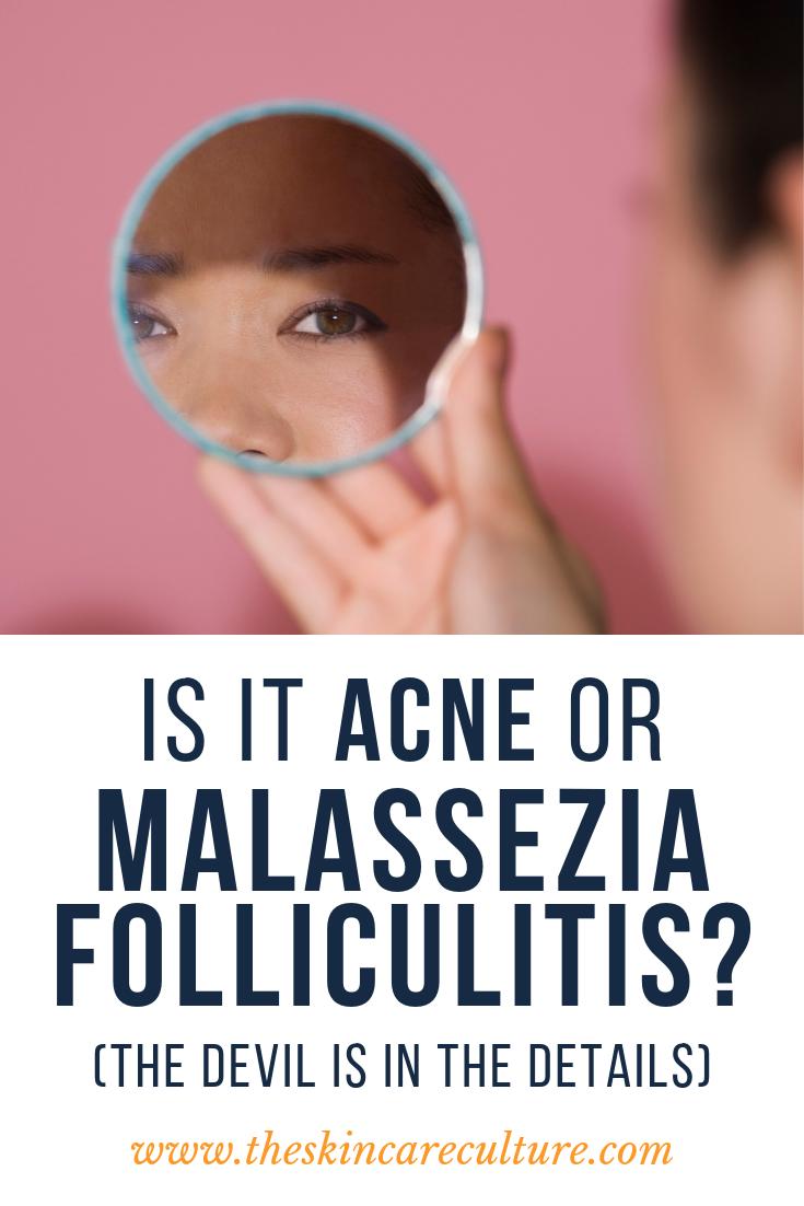 How to Treat Malassezia Folliculitis Successfully