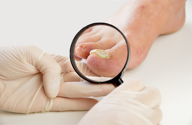 if you have a fungal infection visit a doctor