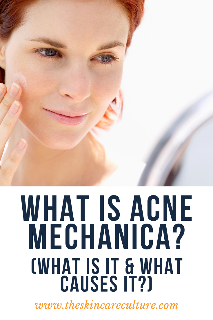 what is acne mechanica