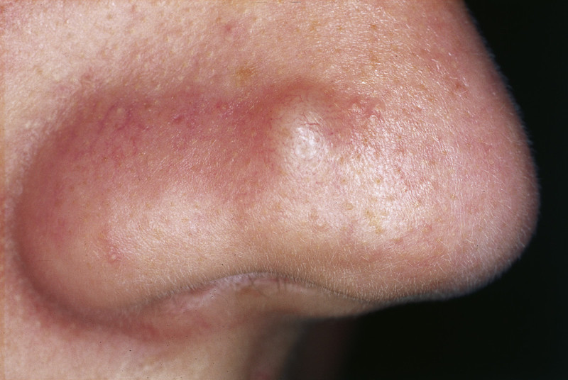 what are papules