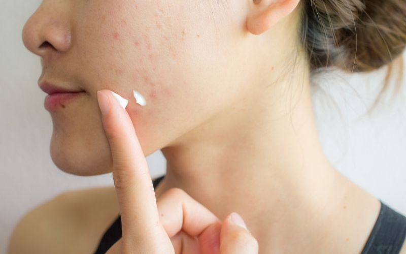 how to cleanse acne prone skin