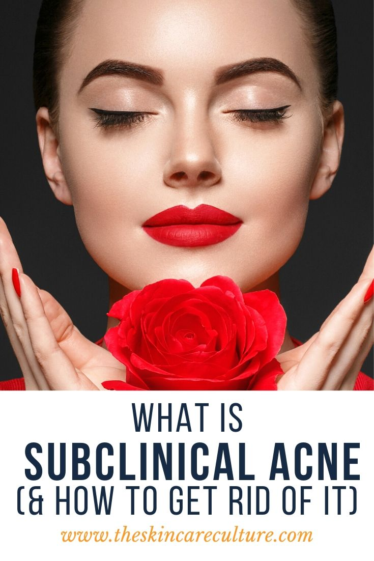 What Is Subclinical Acne (& How To Get Rid Of It)?