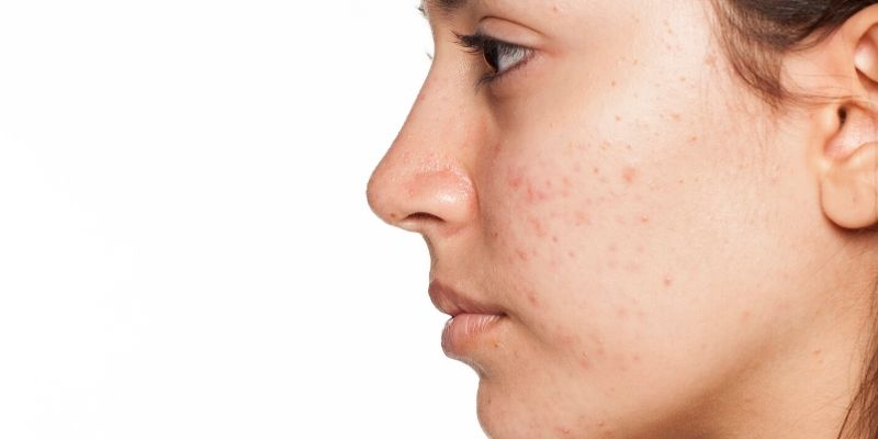 What Makes Acne Itchy
