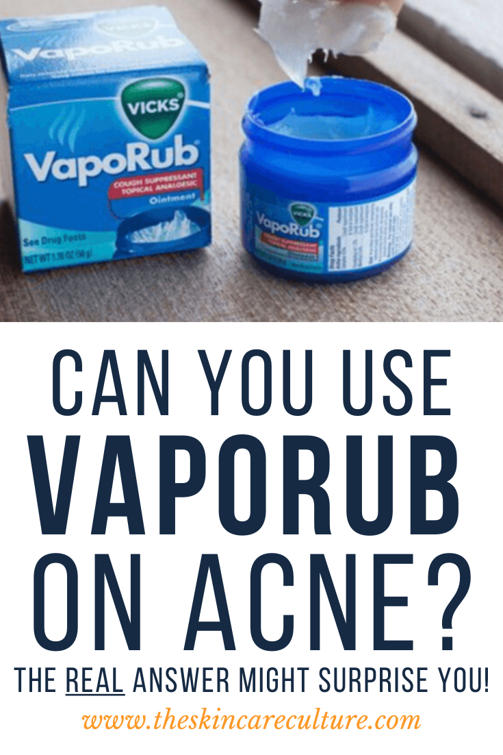 Can You Use VapoRub On Acne?