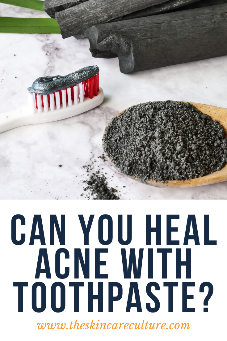 Can You Heal Acne With Toothpaste?