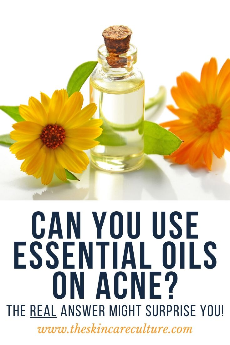 Can You Use Essential Oils On Acne?