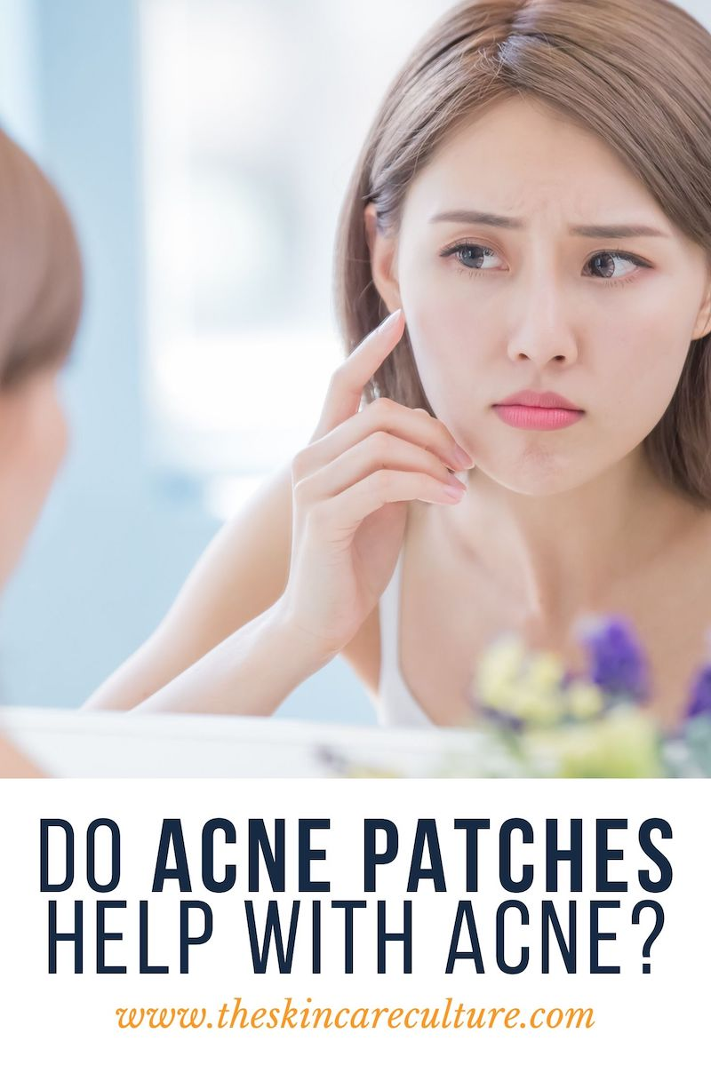 Do Acne Patches Help With Acne?