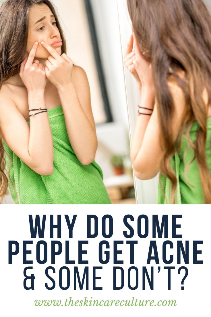 Why Do Some People Get Acne