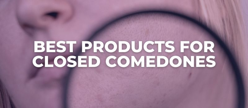 Best Products FOR Closed Comedones