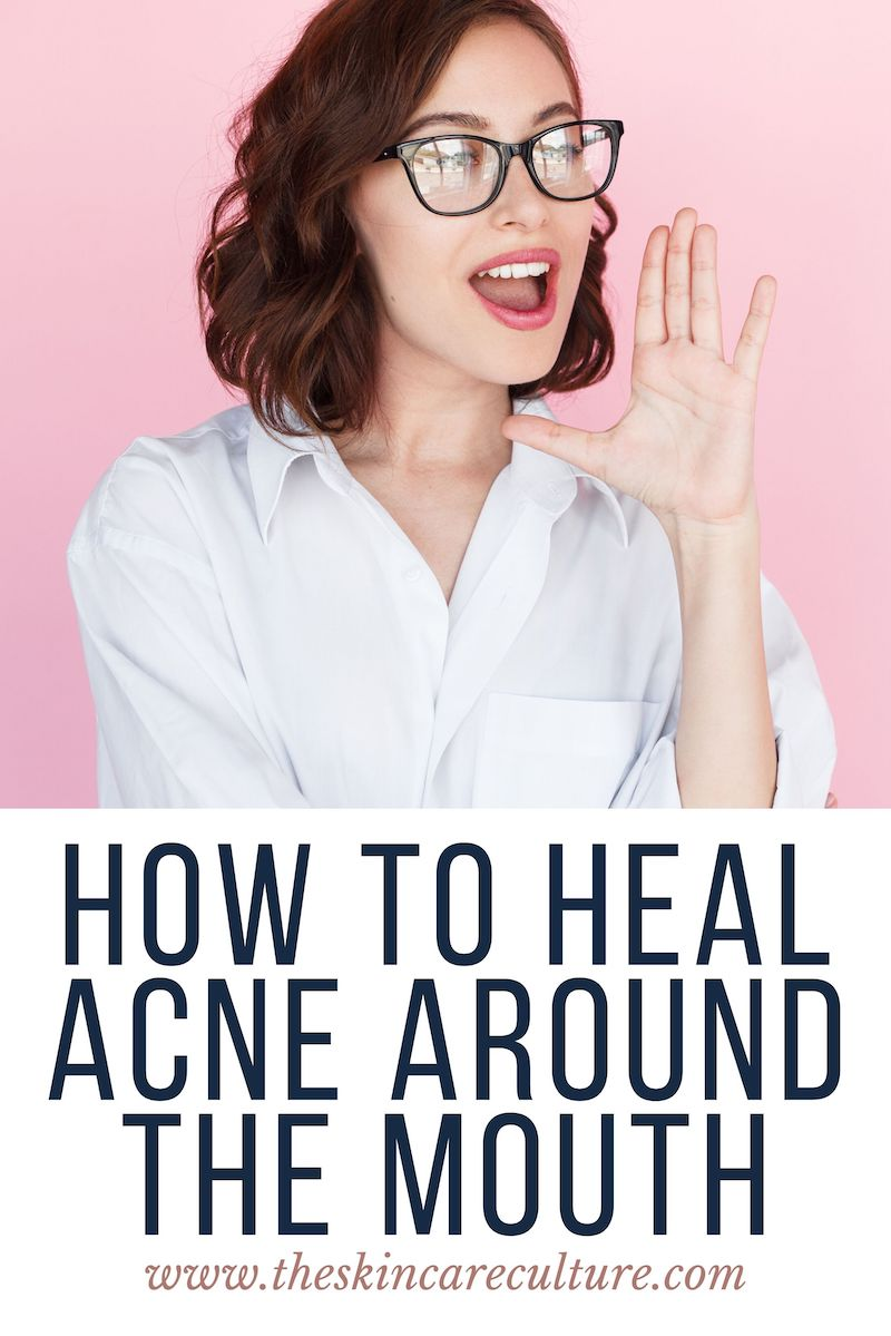 How To Heal Acne Around The Mouth
