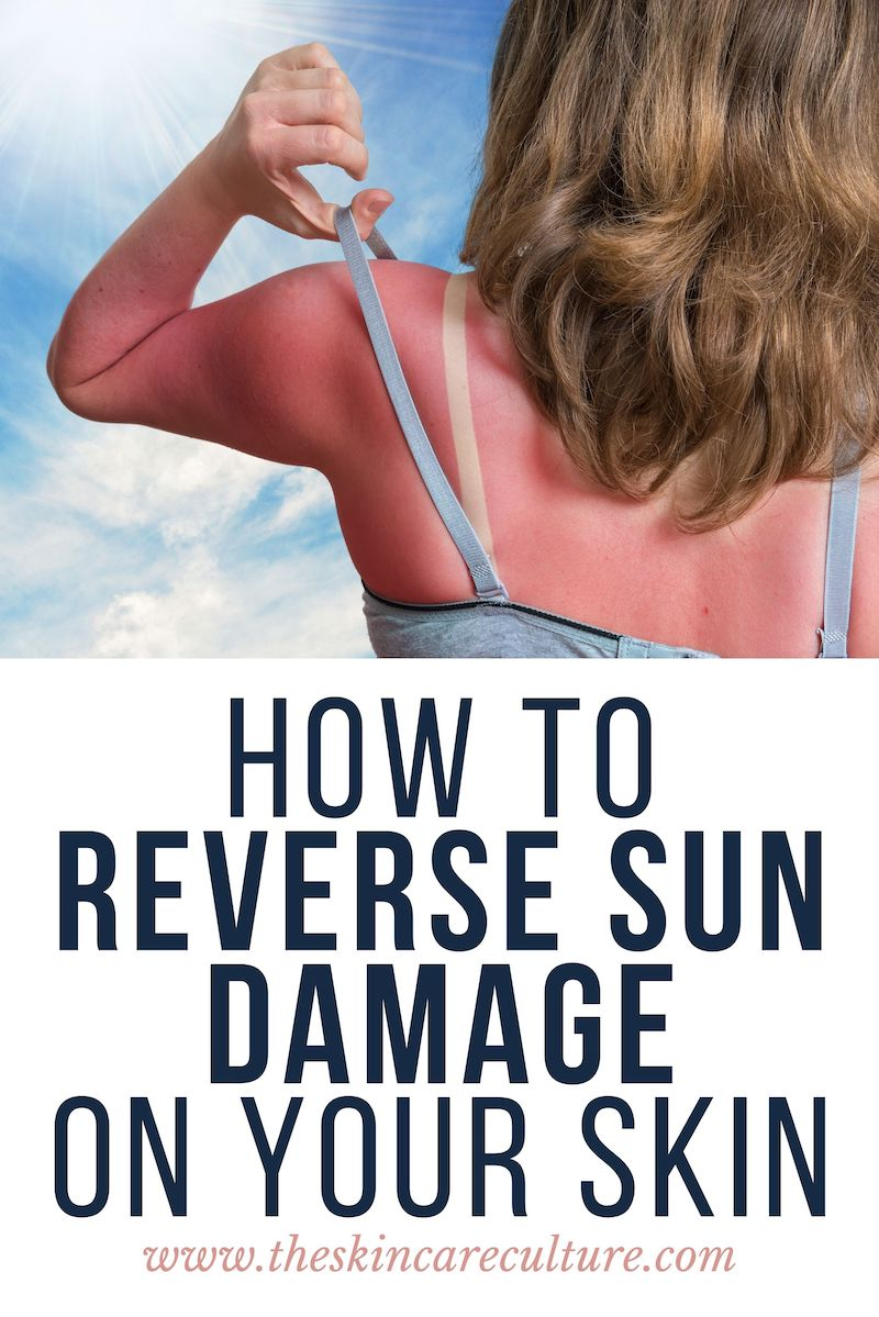 How To Reverse Sun Damage On Your Skin?