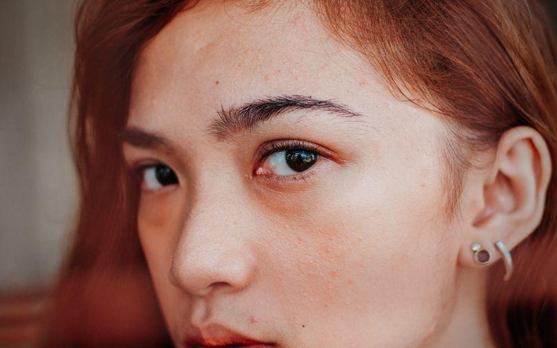 Why Do You Get Blocked Pores