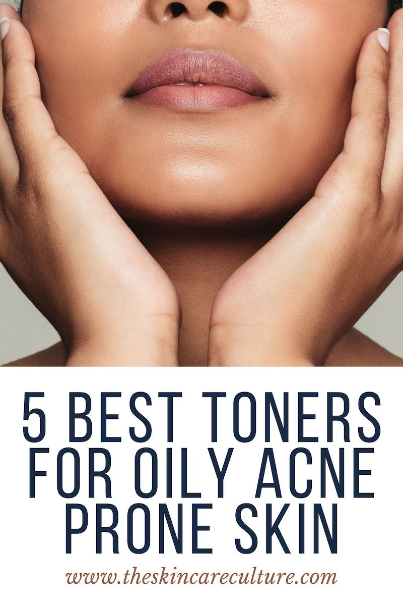 5 Best Toners For Oily Acne Prone Skin