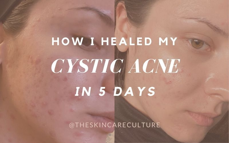 How To Heal Cystic Acne Fast