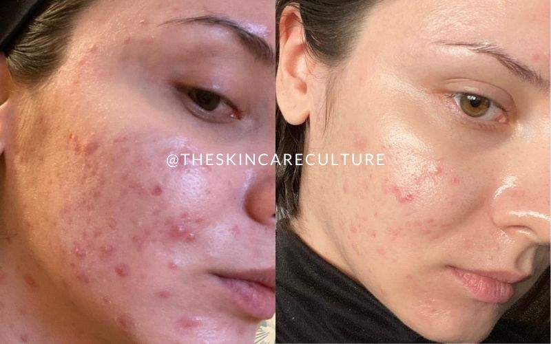How To Heal Cystic Acne Naturally