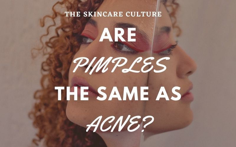 Are Pimples The Same As Acne