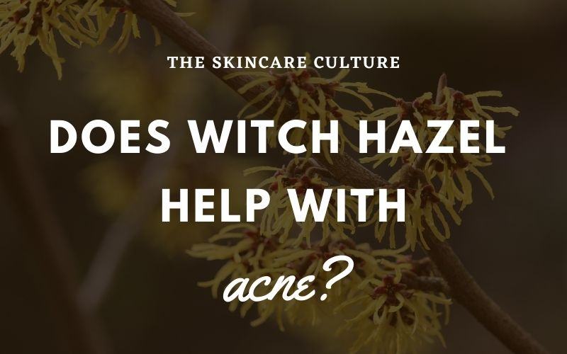 Does Witch Hazel Help With Acne
