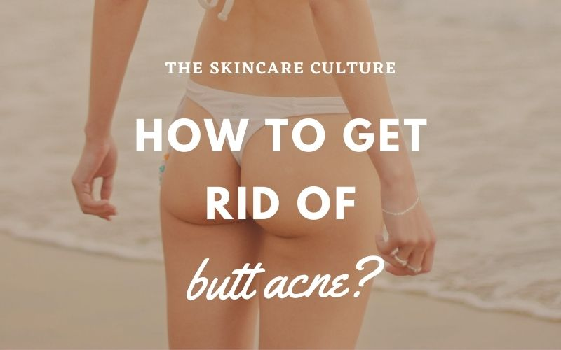 How To Get Rid Of Butt Acne?