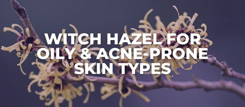 witch hazel for oily and acne prone skin