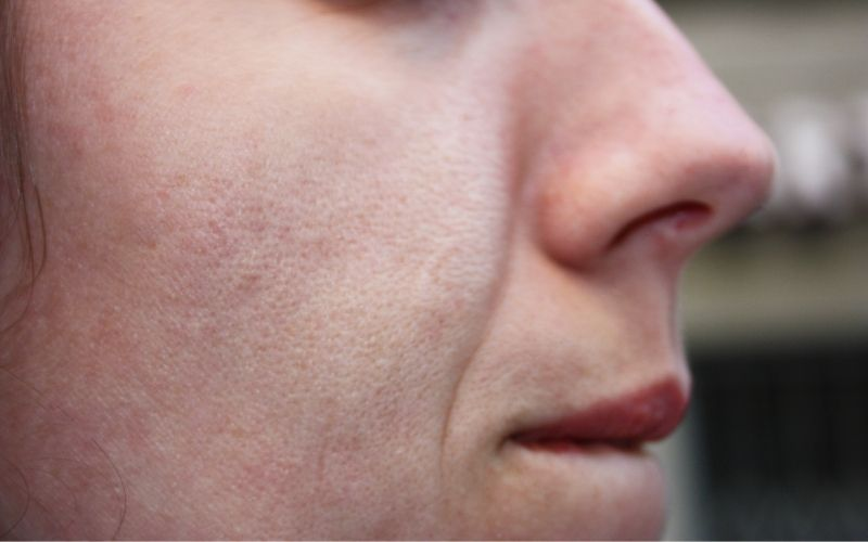 What Is The Cause Of Open Pores