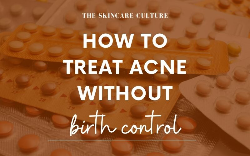 How To Treat Acne Without Birth Control?