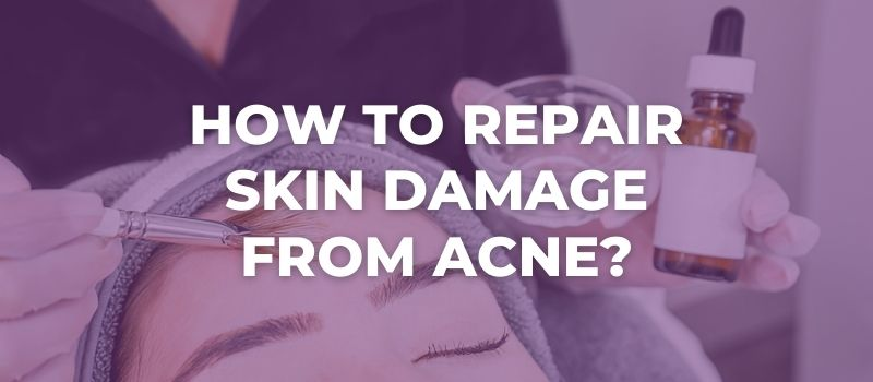 How To Repair Skin Damage From Acne?