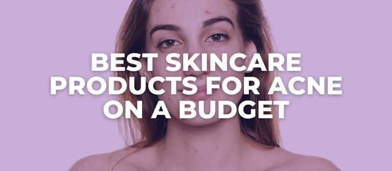 Best Skincare Products For Acne On A Budget